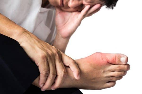 imagenes de acido urico en la mano que consecuencias ocasiona el exceso de acido urico en el organismo acido urico y urea en sangre